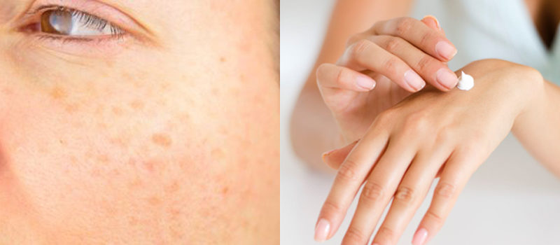 Co způsobuje stařecké skvrny na kůži a jak jim předcházet