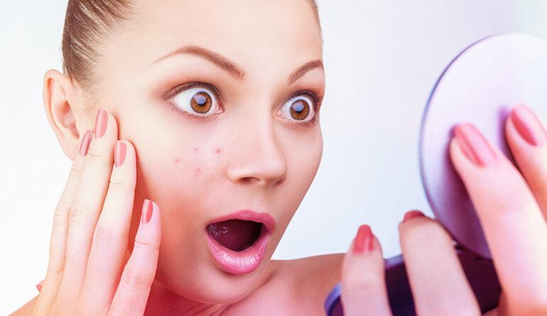 Zdravotní problémy indikují různé typy kožních pupínků a akné
